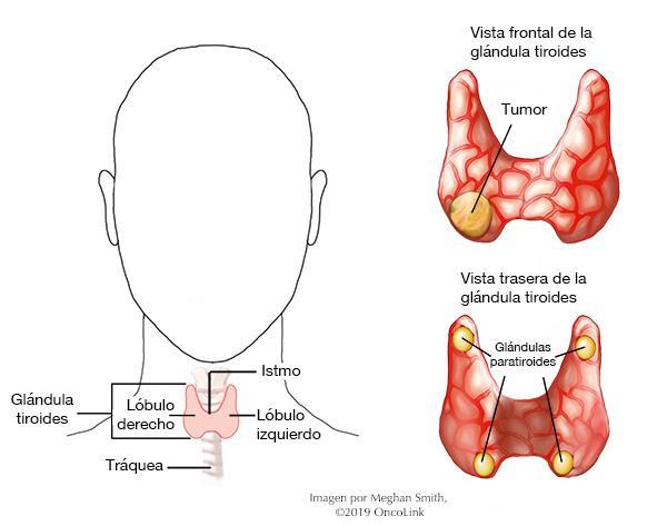 tumores en el tiroides sintomas