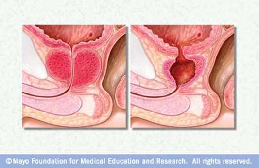 Prostate gland before and after a TURP procedure